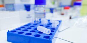 prevencion-de-riesgos-laborales-en-el-sector-quimico